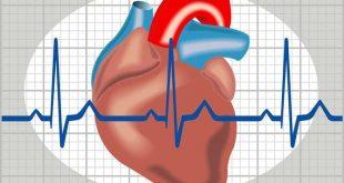 اضطراب نظم القلب , فهم مشكلة اضطراب نظم القلب