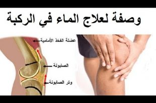 صور التخلص من ماء الركبه , علاج سريع وفعال لعلاج الم المفاصل