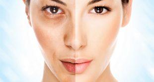 صور علاج تقشير الوجه , العلاج الطبى والطبيعى