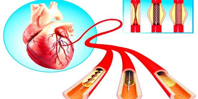صور ما هي عملية القسطرة , اهميتها لعلاج القلب وتشخيص العلاج