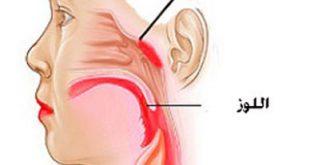 صورة اعراض لحمية الانف عند الاطفال , امراض الجيوب الانفيه اسبابها