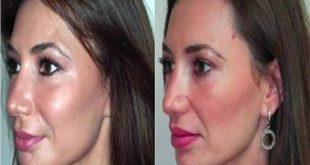 صورة حقن الوجه بالدهون , عمليات الفيلر ونفخ الوش مميزاتها وعيوبها